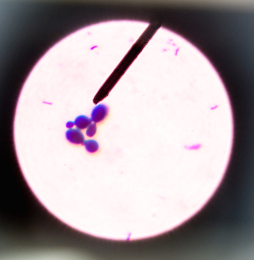 Budding yeast cells in sputum gram stain fine with Microscope 100x.